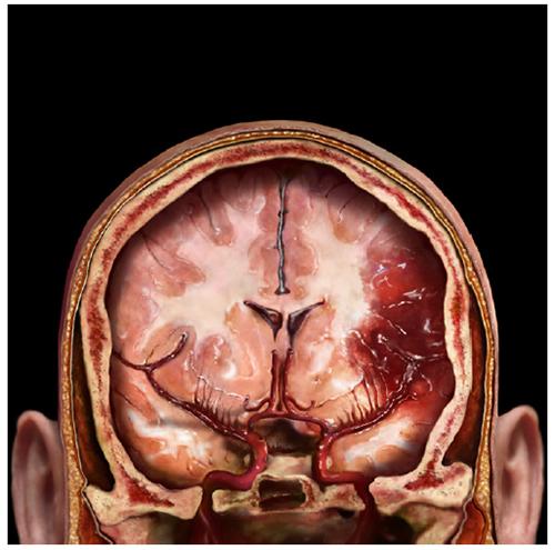 A. Tsiaras, Anatomical Travelogue/The VisualMD©, En la cabeza