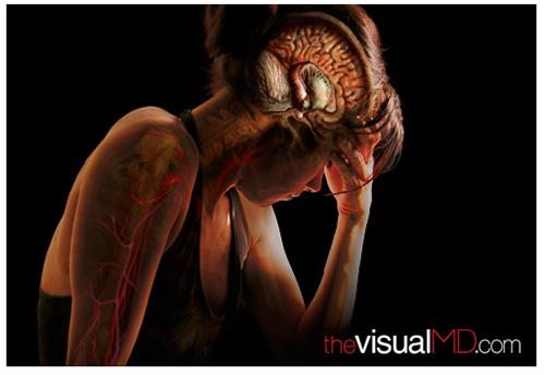 A. Tsiaras, Anatomical Travelogue/The VisualMD©, Estrés